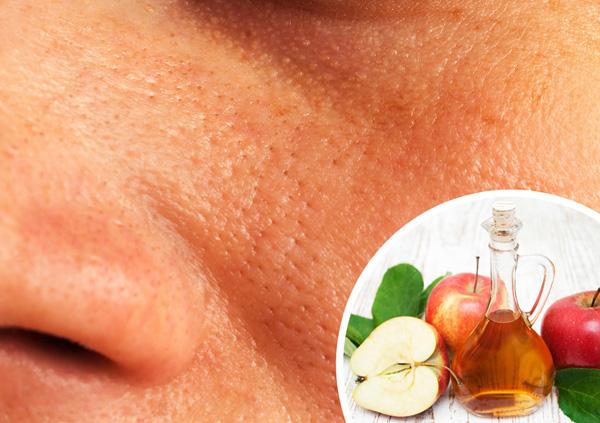 Lỗ chân lông to Để làm se khít lỗ chân lông, hãy pha giấm táo với nước theo tỷ lệ 1:1 rồi nhũng bông cotton vào hỗn hợp, thoa lên da, để khoảng 5 phút rồi rửa sạch lại.