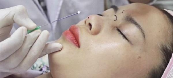 Việc nâng mũi bằng phương pháp chỉ sinh học cần được thực hiện bởi bác sĩ có tay nghề.