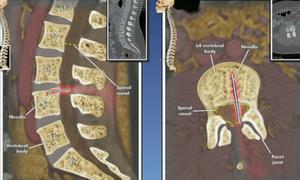 Kim tiêm gây tê màng cứng mắc trong cột sống 14 năm khiến mẹ có nguy cơ bị liệt