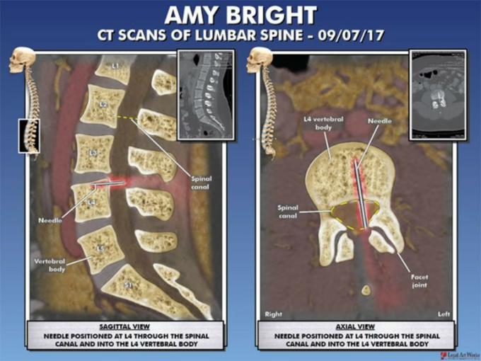 Ảnh chụp CT cho thấy một phần chiếc kim tiêm còn sót lại trong cột sống của Bright.