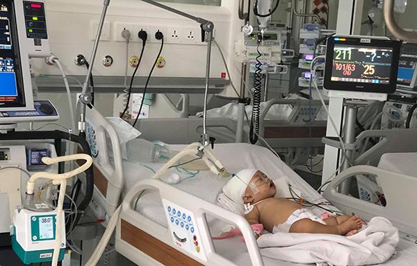 Bé gái hiện đang hồi phục sức khoẻ sau khi phẫu thuật. Ảnh bệnh viện cung cấp.