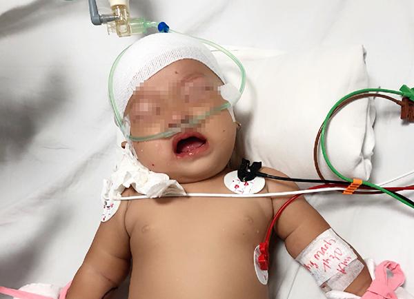 Khỉ cào vào mặt, cắn ngay đỉnh đầu gây vết thương khá sâu và rộng ở cháu bé. Ảnh bệnh viện cung cấp.