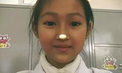Cô bé 12 tuổi hoàn thành tâm nguyện hiến tặng giác mạc sau khi qua đời