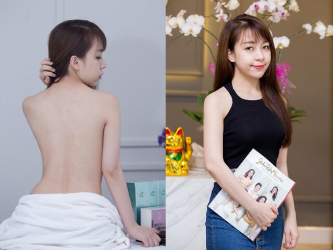 Công nghệ tắm trắng Bạch ngọc thể - Ngưu chương chi không gây đau rát, không bào mòn và lột tẩy da, giúp chị emcólàn da mềm mượt, khỏe đẹp.