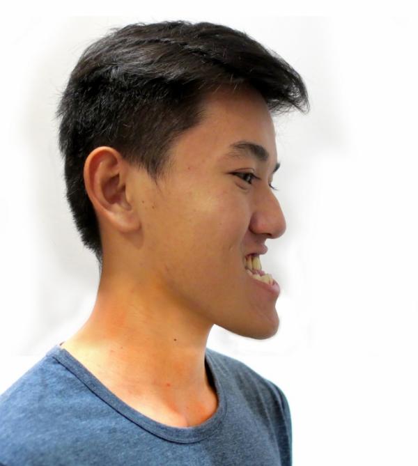 Trước khi trở thành hot boy công an như hiện tại, Ca Trần Khánh Du (22 tuổi, quê Bến Tre) từng sống trong mặc cảm vì khuyết điểm hàm móm nặng, hai hàm không thể khép kín. Bạn cho biết: Hai hàm của em không khớp nên ăn nhai cũng khó. Em bị bạn bè trêu chọc và chê cười nhiều nên rất mặc cảm. Trong một lần đi cắt tóc, người ta còn bảo em ra đường nên đeo khẩu trang. Mong muốn của Khánh Du lúc bấy giờ là có được vẻ ngoài bình thường như mọi người. Em cũng tìm hiểu thông tin về những phương pháp có thể khắc phục nhược điểm của bản thân, Du nói.