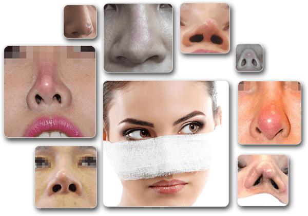 Một số biến chứng do nâng mũi sai cách.Xem thêm một số hình ảnh biến chứng sau khi nâng mũitại đây.