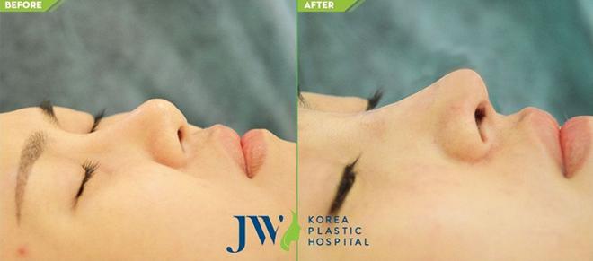 Nâng mũi S line sử dụng sụn tai bao bọc đầu mũi