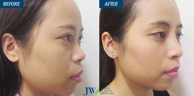 Nâng mũi có độ cao cân đối với cấu trúc gương mặt
