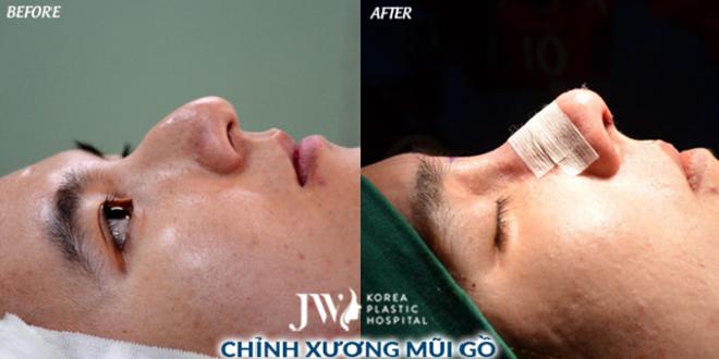 Một trường hợp chỉnh sửa xương mũi gồ.