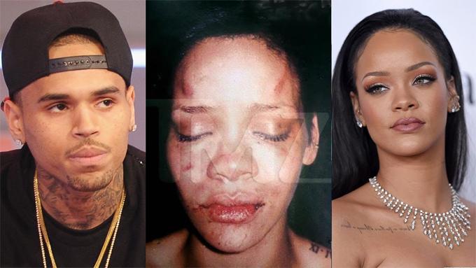 Chris từng đánh Rihanna sưng mặt.