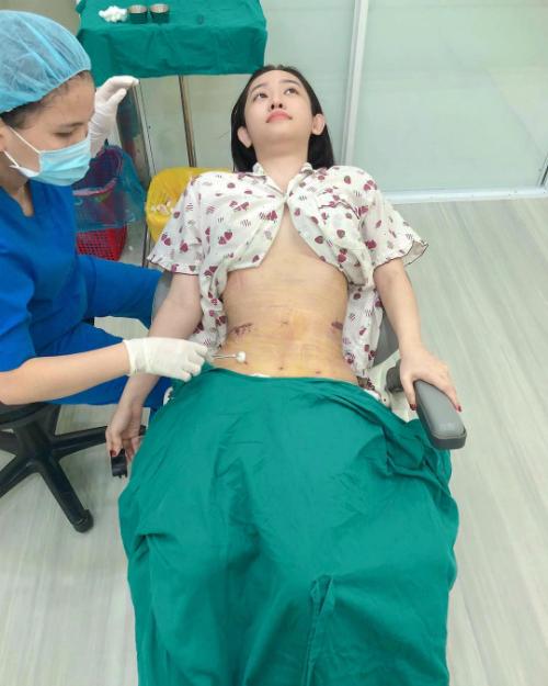 Hotgirl Cà Mau vừa thực hiện hút mỡ bụng và lấy mỡ tự thân tiêm vào vòng 3. Cô đăng tải bức ảnh cập nhật tình hình sức khỏe hiện tại: Hôm nay đỡ sưng nhưng vẫn còn một ít máu bầm, còn eo thì bao thon.
