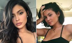 Kylie Jenner thừa nhận rút hết filler, trả lại vẻ tự nhiên cho đôi môi