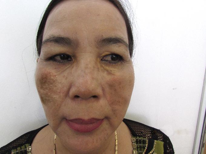 Giải cứu làn da cháy nám 20 năm của người phụ nữ Đồng Nai - 1