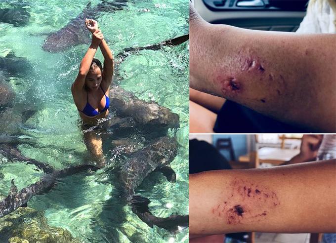 Vết răng cá mập trên cánh tay Katarina.