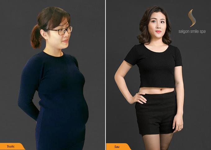 Người phụ nữ giảm béo không phẫu thuật dù chồng là bác sĩ PTTM - 2