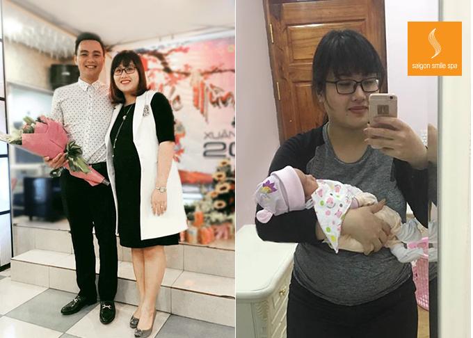 Người phụ nữ giảm béo không phẫu thuật dù chồng là bác sĩ PTTM