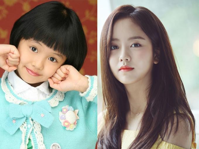 Kim So Huyn  Ra mắt lần đầu thông qua bộ phim Happy Woman năm 2007 khi mới 9 tuổi, nữ diễn viên ngay lập tức được mọi người gọi yêu với cái tên Son Ye Jin nhí. Vì quá đam mê diễn xuất nên khi lên cấp 2, So Huyn đã xin phép gia đình cho phép tự học ở nhà để có thể dành nhiều thời gian theo đuổi nghệ thuật. Sau nhiều nỗ lực, chăm chỉ đóng phim, mỹ nhân nhận được nhiều lời khen từ giới chuyên môn. Năm 2015, với màn thể hiện xuất sắc vai nữ chính trong tác phẩm học đường đình đám School 2015, So Huyn chiến thắng giải Nữ diễn viên mới xuất sắc tại Lễ trao giải KBS Drama Awards. Tài năng không giới hạn của cô còn được thể hiện trong nhiều lĩnh vực khác như người mẫu, MC,... Sau khi nổ súng năm 2018 với tác phẩm truyền hình Chuyện tình radio hợp tác cùng tài tử Yoon Doo Joon, hiện tại, So Huyn vẫn chưa tham gia thêm dự án nào.