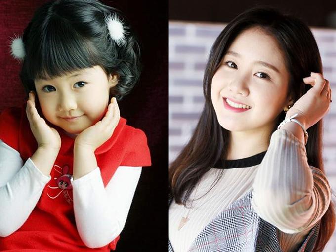 Jin Ji Hee sinh năm 1999, là một trong những sao nhí đình đám nhất Hàn Quốc và có lượng fan đông đảo tại châu Á không kém các đồng nghiệp. Cô nổi tiếng chuyên trị những vai đanh đá và khôn lỏi. Năm 4 tuổi, Ji Hee lần đầu xuất hiện trong phim Khăn tay vàng, nét diễn hồn nhiên, bạo dạn của cô gây ấn tượng mạnh với các đạo diễn. Năm 10 tuổi, Jin Ji Hee gây sốt khi đảm nhận vai Jung Hae Ri chua ngoa, ngang ngược trong sitcom Gia đình là số một (phần hai). Vai diễn này đã giúp tên tuổi của nữ diễn viên được công chúng biết đến rộng rãi. Sau đó, mỹ nhân cũng góp mặt trong nhiều tác phẩm ở cả lĩnh vực điện ảnh lẫn truyền hình như Mặt trăng ôm mặt trời, The throne& Dù bận rộn đóng phim, Jin Ji Hee vẫn không bỏ lỡ việc học, tham gia đầy đủ hoạt động ở trường. Hiện tại, nữ diễn viên chia sẻ, cô dành nhiều thời gian để trau dồi diễn xuất với mong muốn có thể nhận được những vai diễn khó hơn.