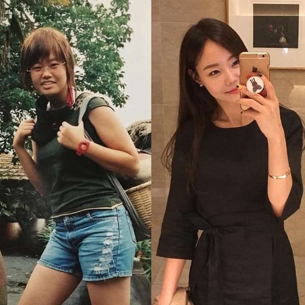 Suji chia sẻ trên trang cá nhân, thời đi học, cô từng nặng tới 65 kg, bắp tay và đùi to khiến cô rất tự ti.