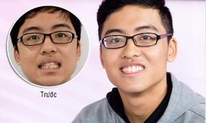 Nam sinh 17 tuổi tự tin giao tiếp sau niềng răng