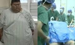 Chàng béo 334 kg mơ làm huấn luyện viên thể hình sau khi cắt bớt dạ dày