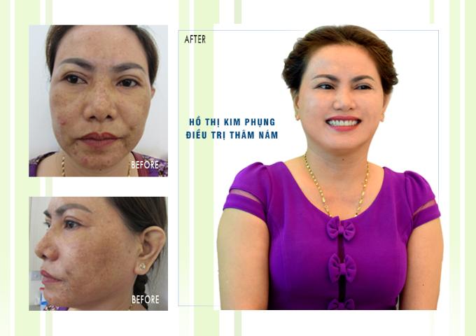 Làn da trước và sau điều trị nám.
