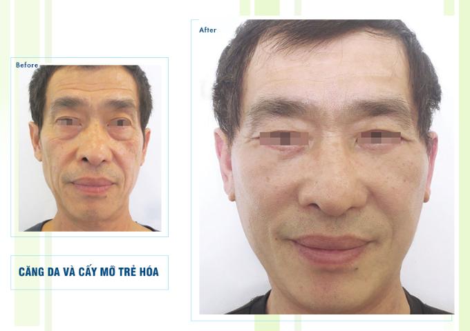 Sự thay đổi của khách hàng sau khi căng da và cấy mỡ trẻ hóa