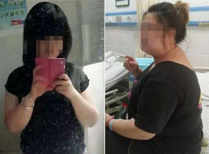 Xiaoli trước và sau khi uống thuốc giảm cân trong vòng 7 năm. Ảnh: Oddity Central.