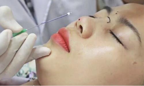 Lưu ý cách chọn chỉ sinh học khi nâng mũi