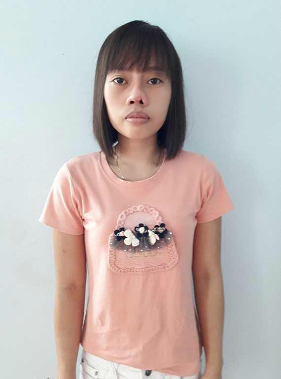 Năm 22 tuổi, chị Vũ Thị Hằng (Thái Bình) bị tai nạn giao thông khiến chức năng mũi bị ảnh hưởng, vào những ngày trái gió trở trời chị sụt sịt, khó chịu.