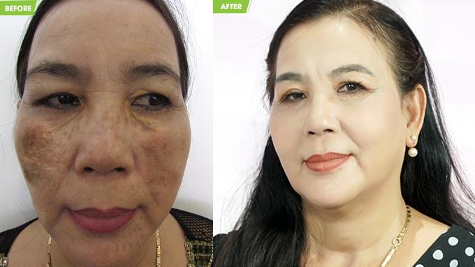 Làn da được điều trị bằng công nghệ tại bệnh viện JW giúp lấylại sự tự tin cho cô Kim Cúc.