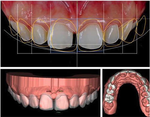 Công nghệ thiết kế nụ cười Design Smile được Nha khoa KIM tích hợp trong bọc răng sứ, xóa bỏ tính rập khuôn của nụ cười.
