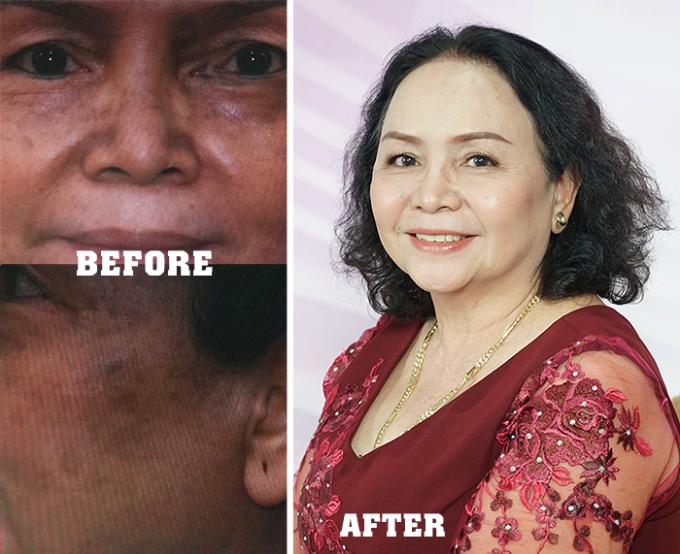Cô Xuân Ngộ trước và sau khi điều trị nám bằng công nghệ laser chuyên biệt. Làn da côtươi trẻ, rạng rỡ trở lại.