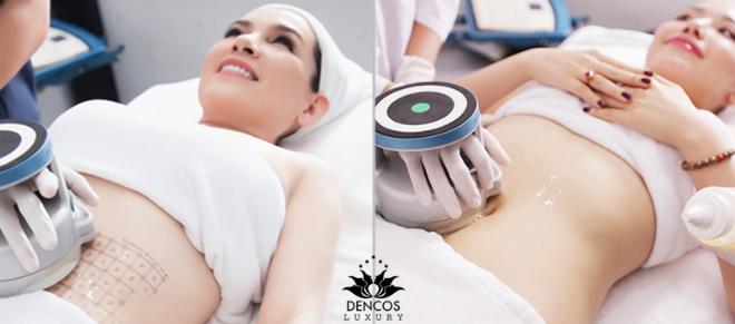 Dịch vụ giảm mỡ không phẫu thuật công nghệ cao tại Dencos được nhiều sao Việt như ca sĩ Phi Nhung, ca sĩ Bảo Thy, á hậu Khánh Phương, nghệ sĩ Thanh Thúy&lựa chọn. Hiện dịch vụ này đang được ưu đãi đến 30% chi phí.