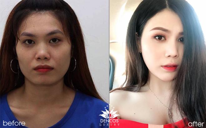 Dịch vụ điêu khắc khuôn mặt không phẫu thuật tại Dencos Luxury giúp diễn viên Ninh Dương Lan Ngọc và nhiều khách hàng có sự thay đổi ngoại hình ngoạn mục. Hiện dịch vụ này đang được ưu đãi đến 25% chi phí.