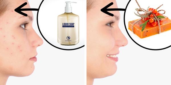 Dùng dầu gội/sữa tắm có chứa hương liệu Nếu có làn da nhạy cảm, các sản phẩm tắm, gội này có thể gây ra mụn trên da. Nên dùng sản phẩm có chiết xuất từ thiên nhiên và ít thành phần hóa học hay chất tạo hương liệu.