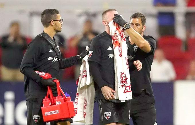 Rooney bê bết máu trên mặt trong trận đấu ghi bàn đầu tiên ở Mỹ - 1