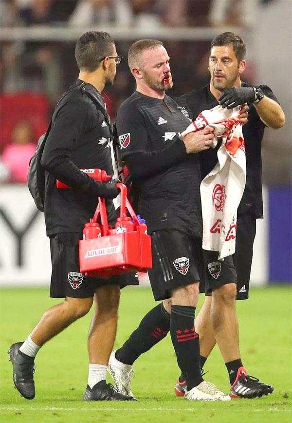 Rooney bê bết máu trên mặt trong trận đấu ghi bàn đầu tiên ở Mỹ