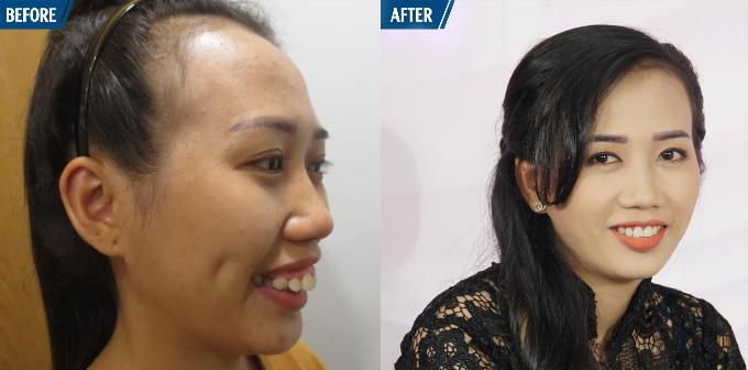 Ca sĩ Khánh Ngọc khâm phục nghị lực của cô gái trẻ bị hàm hô - 3