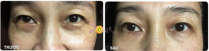 Miễn phí nâng cơ mặt công nghệ Ultherapy khi làm tan bọng mỡ mắt - 1
