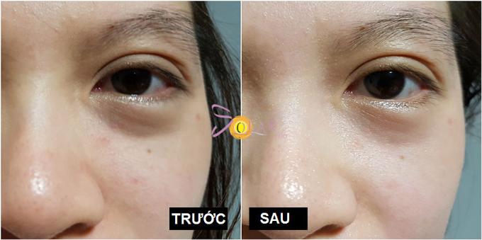 Miễn phí nâng cơ mặt công nghệ Ultherapy khi làm tan bọng mỡ mắt