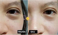 Solar Spa tặng liệu trình nâng cơ mặt Ultherapy cho dịch vụ làm tan bọng mỡ mắt
