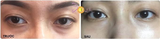 Miễn phí nâng cơ mặt công nghệ Ultherapy khi làm tan bọng mỡ mắt - 2