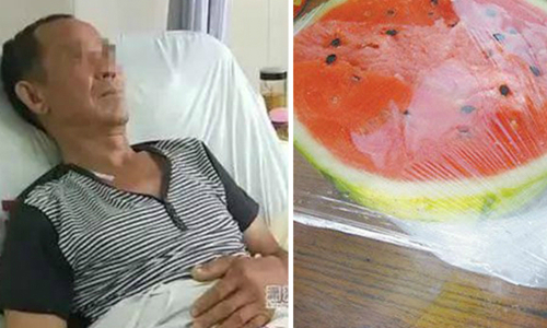 Người đàn ông bị cắt 70 cm ruột sau khi ăn dưa hấu bảo quản trong tủ lạnh