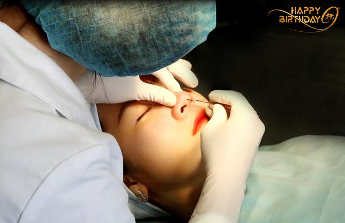 Nâng mũi bằng chỉ sinh học Misko và Hiko từ Hàn Quốc đang được ưu đãi 20% chi phí.