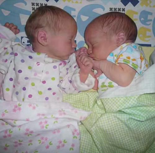 Cặp song sinh không tách rời, cả kể lúc ngủ.