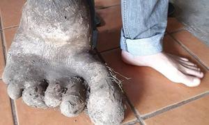 Củ khoai tây nặng 8 kg có hình dáng bàn chân người