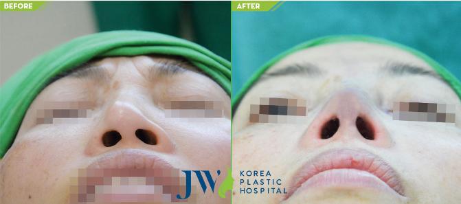 Cách khắc phụcbiến chứng thường gặp khi nâng mũi