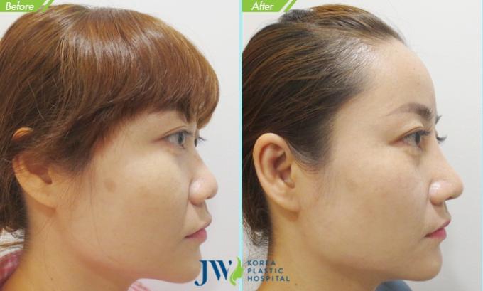 Nâng mũi có thể cải thiện toàn diện các khuyến điểm để có dáng mũi đẹp.