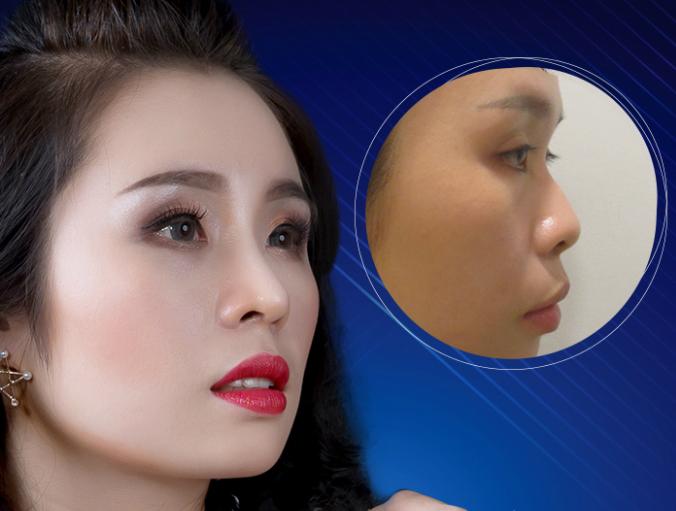 Việt Trang làm mới hình ảnh nhờ nâng mũi S Line Plus.
